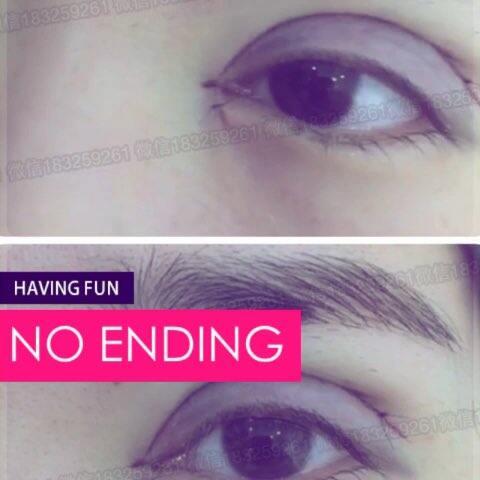 纹眉纹绣眼线 misko隆鼻三点全切芭比欧式双眼皮开内外眼角加薇信