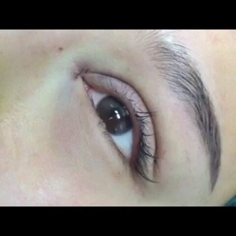 微整形##割双眼皮##芭比双眼皮##欧式芭比双眼皮