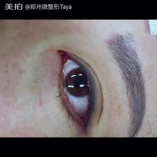 三门峡鹤壁信仰漯河微整形全切韩式欧式芭比双眼皮修复开眼角芭比眼