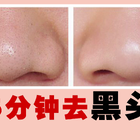 五分钟去黑头!告别草莓鼻 ,最有效的去黑头方法,你确定你不要学习吗?#美妆护肤##美肤研究室##黑头#@时尚频道官方账号