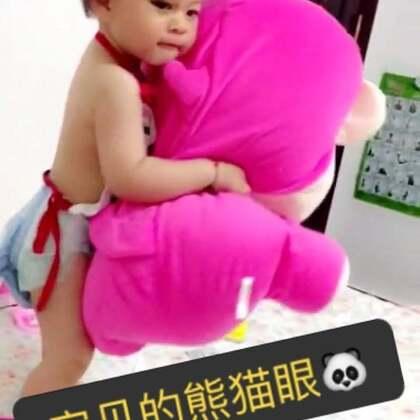 50厘米高的床上掉下来居然摔到眼睛了,好在没有伤到眼球,只是眼睛淤青退的比较慢。😩😩😩😩😩😩#宝宝从床上掉下来,好心疼好自责,##宝宝##熊猫眼小朋友#