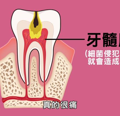 【看好你的牙】第5集-牙齒吃冷吃熱會痛預示著什麼💔 by魔法牙醫 潘韞珊院長✨口腔有多髒你知道嗎?之前有跟大家提到,根據每個人狀況不同,口腔中大約含有300-700種細菌!😖👿#牙刷##細菌##魔法牙醫#