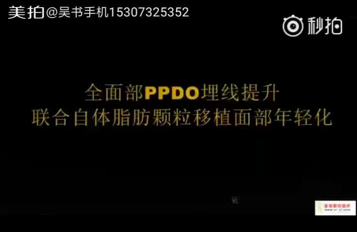 《全面部ppdo埋线提升联合自体脂肪颗粒移植面部年轻化》 (申五一)--视频片段