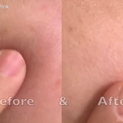 这次DR.Cink 水微晶长效锁水精华液,让粉红非常的惊讶!对皮肤锁水及补水的效果非常的好在影片中可看到粉红原本肌肤非常的干,并且有细纹产生!在使用后,竟然让皮肤快速的恢复,光滑细致、充满胶原蛋白的水润感!对于洗完脸肌肤跟粉红一样的干妹妹们 是一大救星!@美拍小助手 @美拍小帮手 @玩转美拍