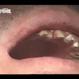 牙齿烂掉,只能贴面#反手点赞#