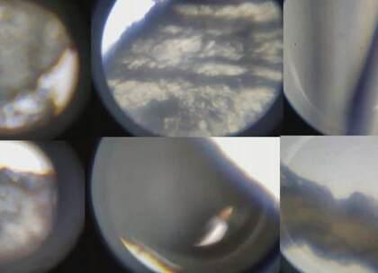 在显微镜下我们的鼻屎耳屎死皮指甲都是什么样的呢?#作死##敬汉卿##奇葩#