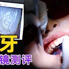 揭秘洗牙究竟能洗多干净,真有必要每年洗牙吗?